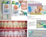 Hyper Dental Peeling Stick Pemutih Gigi – 258