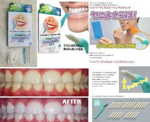 Hyper Dental Peeling Stick Pemutih Gigi - 258